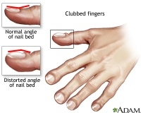 Clubbing of Finger nails and toenails is a sign of Lung Cancer