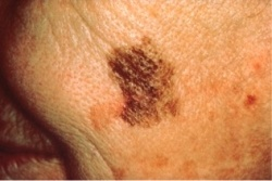 Skin cancer mole with a large border.