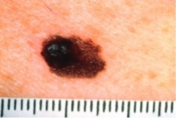 Skin Cancer - A of Asymmetrical Mole