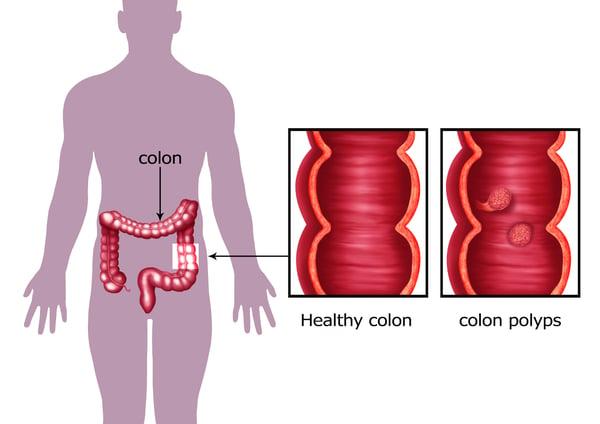 colon polyps can become colon cancer